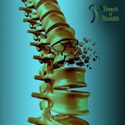 vertebral-compression-fracture